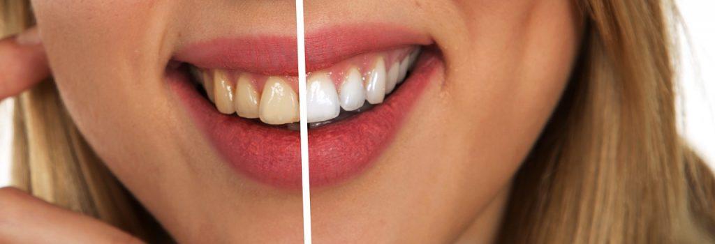 Pourquoi se blanchir les dents